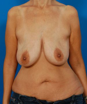 Body Lift Photos: Case 3 - before