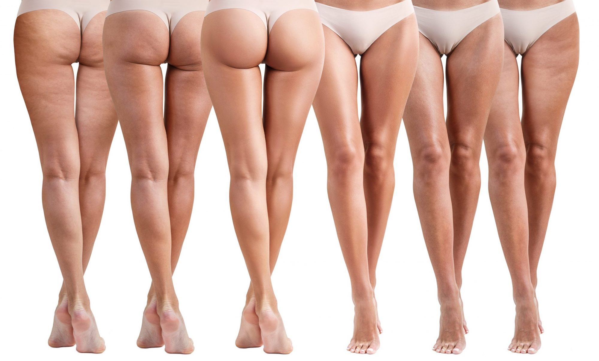 Brazilian Butt Lift California Sunset Cosmetic Surgery