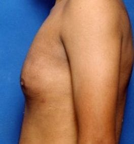 Gynecomastia: Male Breast Reduction Photos: Case 1 - After 12 Days