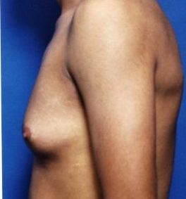 Gynecomastia: Male Breast Reduction Photos: Case 1 - before