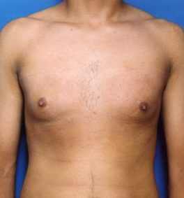 Liposuction For Men Photos: Case 1 - after