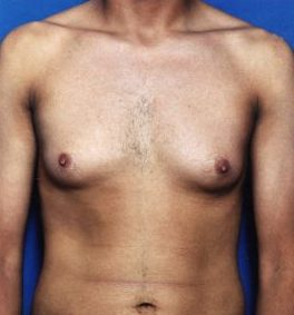 Liposuction For Men Photos: Case 1 - before