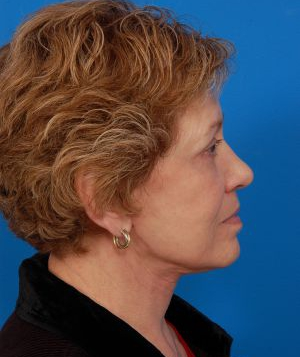 Facelift Photos: Case 11 - After 3 Months