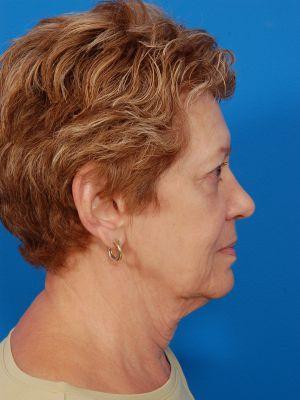 Facelift Photos: Case 11 - before