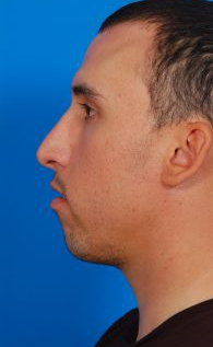 Chin Implant Photos: Case 9463 - before