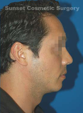 Chin Implant Photos: Case 8 - After 3 Months