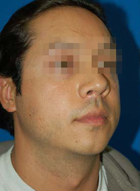 Chin Implant Photos: Case 8 - before