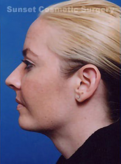 Chin Implant Photos: Case 3 - after