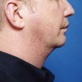 Chin Implant Photos: Case 5 - after