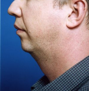 Chin Implant Photos: Case 5 - before