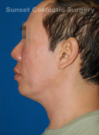 Chin Implant Photos: Case 6 - After 3 Months