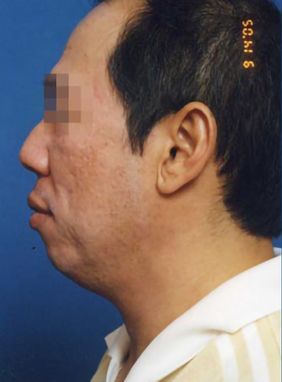 Chin Implant Photos: Case 6 - before