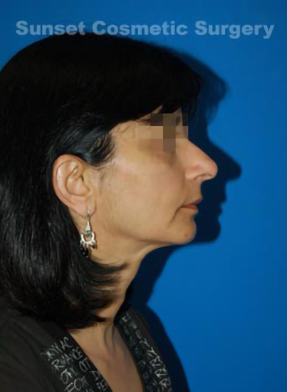 Chin Implant Photos: Case 7 - after