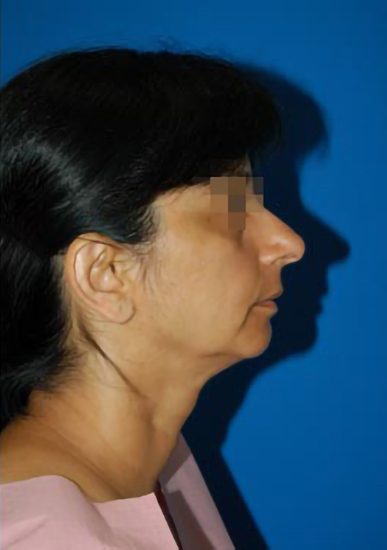 Chin Implant Photos: Case 7 - before