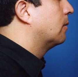Chin Implant Photos: Case 9 - after