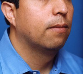 Chin Implant Photos: Case 9 - before