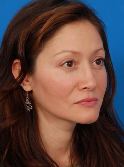 Eyelid Surgery Photos: Case 2 - after