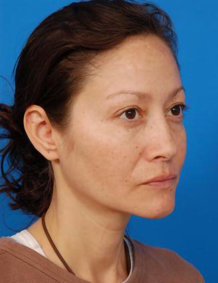 Eyelid Surgery Photos: Case 2 - before