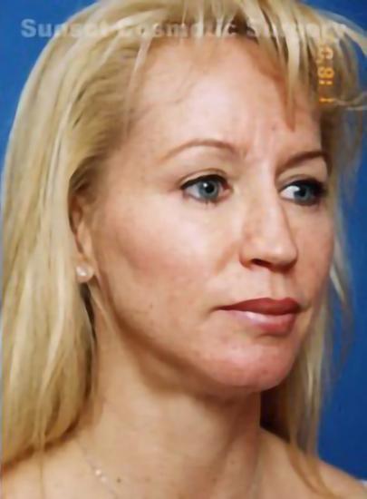 Eyelid Surgery Photos: Case 5 - after