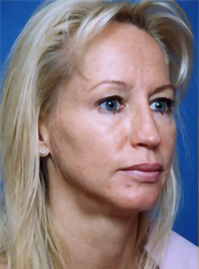 Eyelid Surgery Photos: Case 5 - before