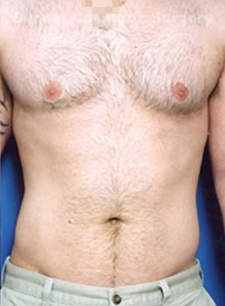 Gynecomastia: Male Breast Reduction Photos: Case 2 - After 2 Months