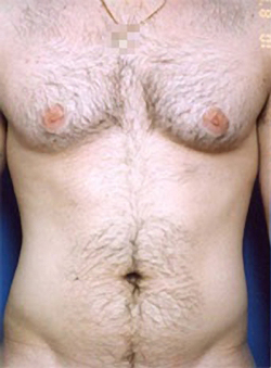 Gynecomastia: Male Breast Reduction Photos: Case 2 - before