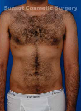 Liposuction For Men Photos: Case 3 - After 6 Weeks