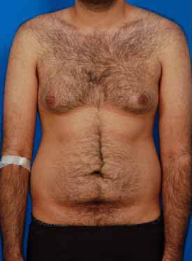 Liposuction For Men Photos: Case 3 - before