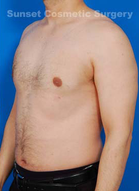 Liposuction For Men Photos: Case 4 - after