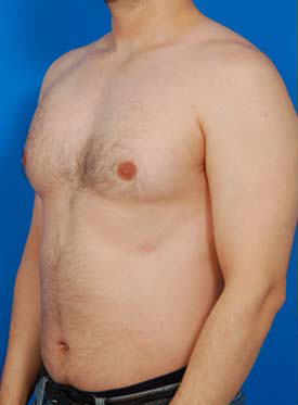 Liposuction For Men Photos: Case 4 - before
