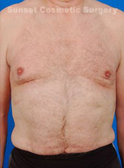 Gynecomastia: Male Breast Reduction Photos: Case 5 - After 3 weeks