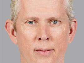 Juvéderm Voluma Case 1 - After 1 month