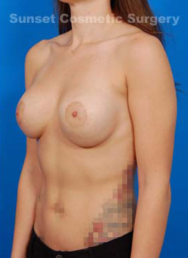 Tuberous Breast Correction : Case 3 - after