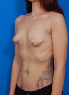 Tuberous Breast Correction : Case 3 - before