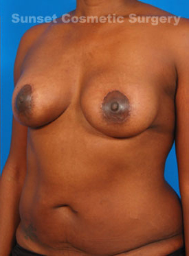Tuberous Breast Correction : Case 1 - after