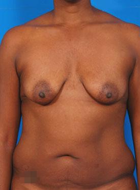 Tuberous Breast Correction : Case 1 - before