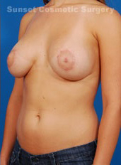 Tuberous Breast Correction : Case 6 - after