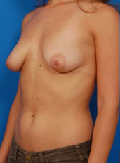 Tuberous Breast Correction : Case 6 - before