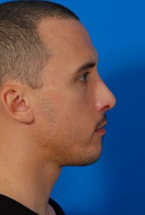 Rhinoplasty Photos: Case 9463 - After 2 Years
