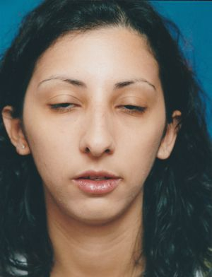 Rhinoplasty: Case 362 - before