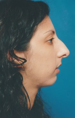 Chin Implant Photos: Case 4 - before