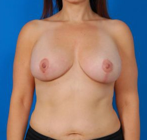 Anchor Scar Breast Lift with Saline Implants Photos: Case 27 - After 1 Year