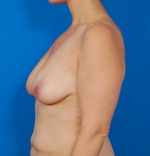 Anchor Scar Breast Lift with Saline Implants Photos: Case 27 - before