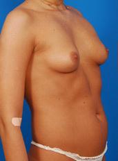 Breast Augmentation, Silicone Implants: Case BA-S-9