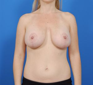 Mastopexy Breast Lift Photos: Case 225 - after