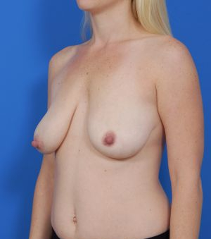 Mastopexy Breast Lift Photos: Case 225 - before