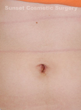 Belly Button Surgery Photos: Case 1 - after