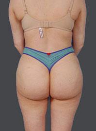 Reversal Brazilian Butt Lift Photos: Case 13