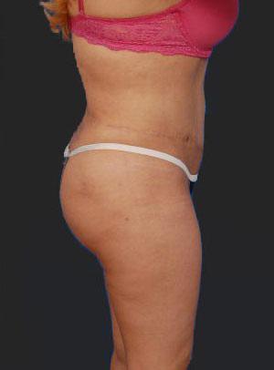 Brazilian Butt Lift Photos: Case 8