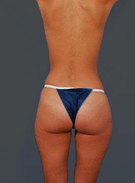 Brazilian Butt Lift Photos: Case 9